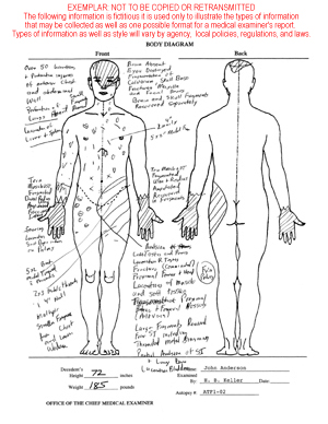 Upper Side Body Diagram http://www.interfire.org/features/fatalities.asp